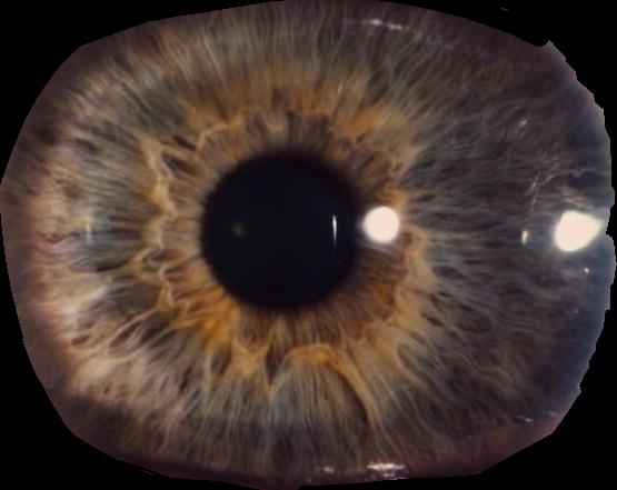 #eye #contacts#freetoedit