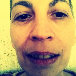 poorly swollen glands depressed bit stressed