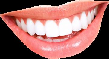 teeth teethwhitening smile lips pink freetoedit