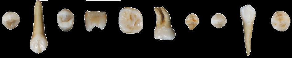 teeth horror gore goreaesthetic pastelgore freetoedit