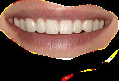 #freetoedit #smile #teeth