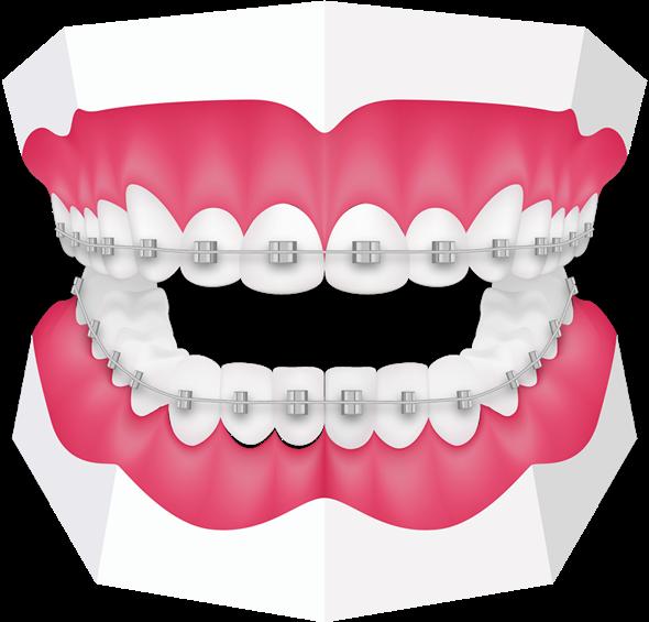 #freetoedit #teeth #tooth #dentist #orthodontist #braces