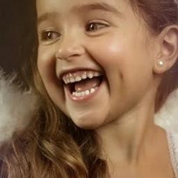 dimple dimples happy laugh laughing pcbeautifulbirthmarks ircfanartofkai