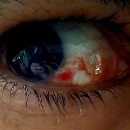 freetoedit eye blood photography mobilephotography