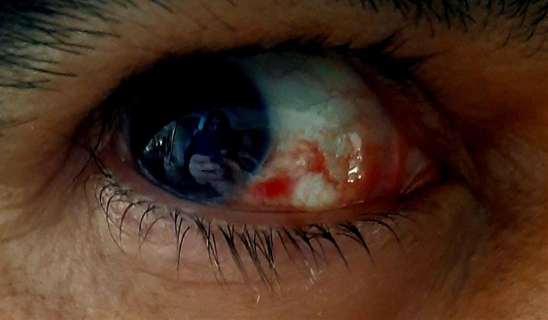 #freetoedit #eye #blood #photography #mobilephotography